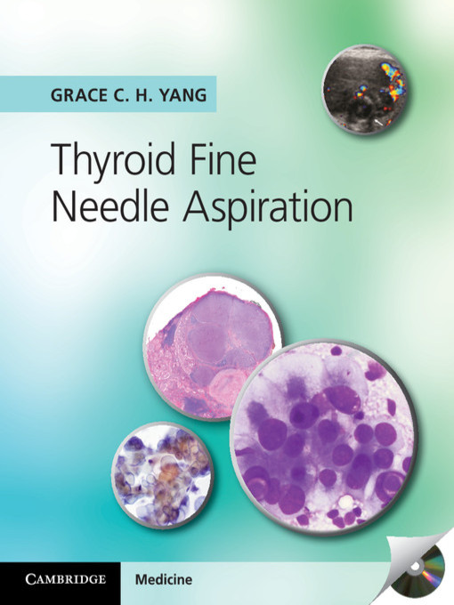 Thyroid Fine Needle Aspiration (eBook)