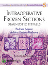 Intraoperative Frozen Sections (eBook): Diagnostic Pitfalls
