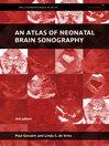 An Atlas of Neonatal Brain Sonography (eBook)