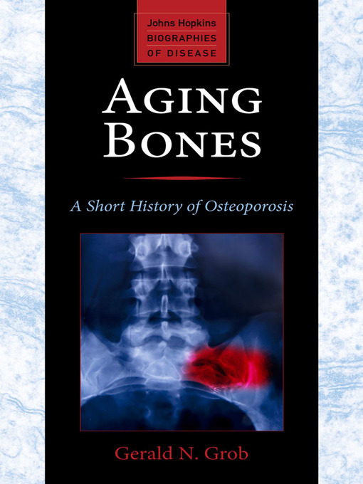 Aging Bones (eBook): A Short History of Osteoporosis